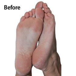 Emjoi Ap3rps White Micropedi Roller Smoothes Dry Feet Rough